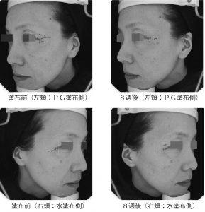 抗シワ原液化粧品も可能な超高分子プロテオグリカン原料